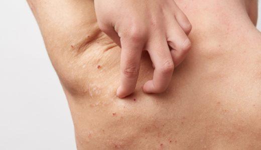 ほむほむの夕のプチセッション(8)重症になったアトピー性皮膚炎、どのように治療を続けていく?